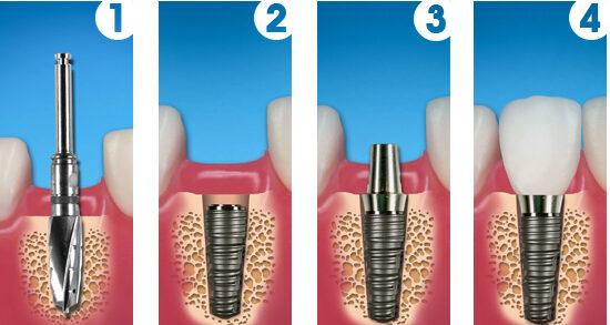 beneficile implantului dentar