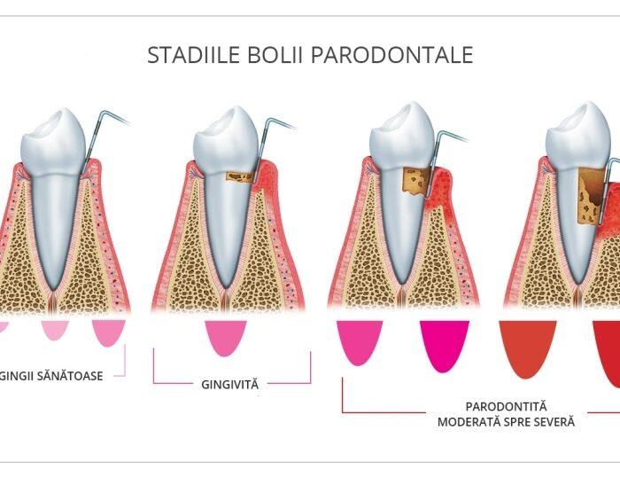 boala-parodontala-omniadental