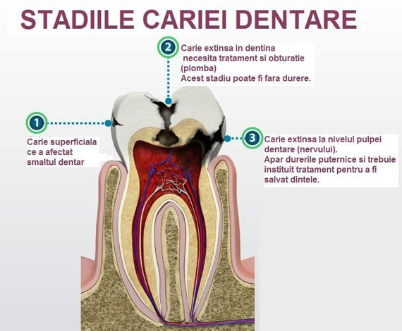 caria-dentara-migali-dental-clinic